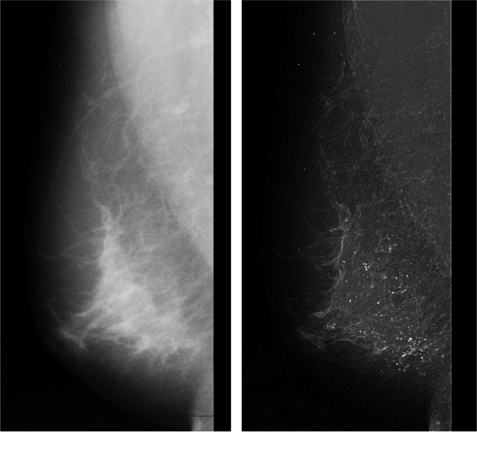 micro calcification of breast